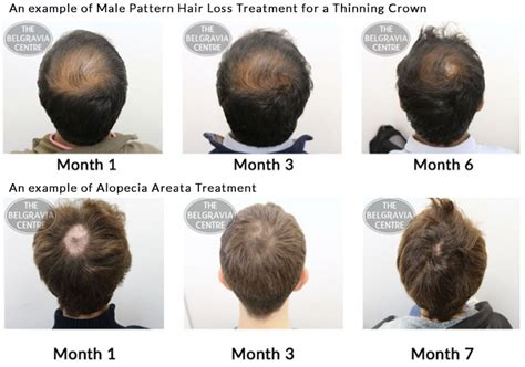 is hair loss pattern related to body mass index advice on treating bald spot caused by male pattern hair