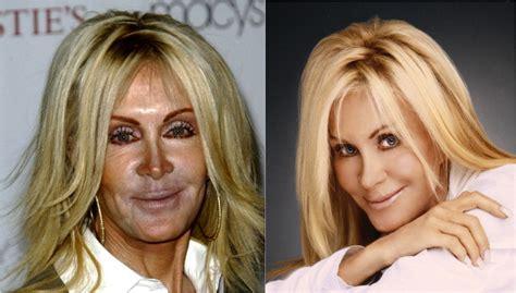 celebrity plastic surgery blog celeb surgery pics celebrity plastic surgery is it just bad photos