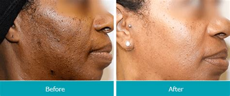 light chemical peel before and after can you wear makeup after a light chemical l life style