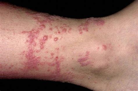 poison oak rash pictures causes symptoms treatment contagious diseases pictures