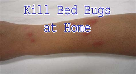how do you get bed bugs your surroundings 6 steps