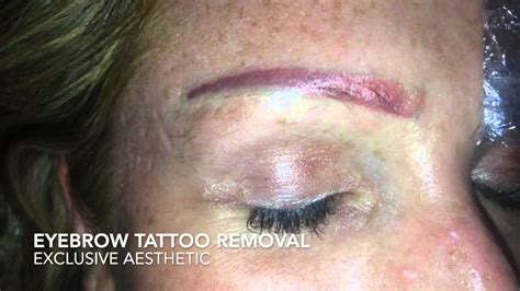 eyebrow tattoo removal by exclusive aesthetic youtube