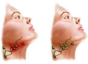 l inflammation de la photo lymphatique sous maxillaire