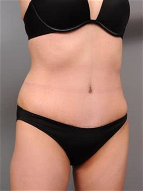 c section tummy tuck combo photo gallery triplet tummy tuck in new york