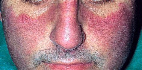 Mcmaster Resume Sle 100 Cutaneous Lupus Erythematosus Clinical And Cutaneous Lupus Erythematosus Jama