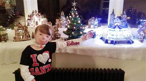 girl  survives fire wishes  christmas cards todaycom