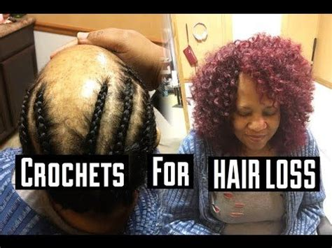how to twist hair on alopecia flawless sew in tutorial with no glue houston s youtube