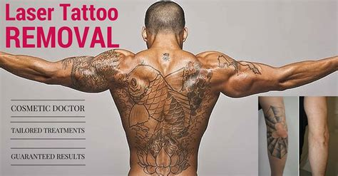 how to become tattoo removal specialist laser removal gold coast oo la la cosmetic