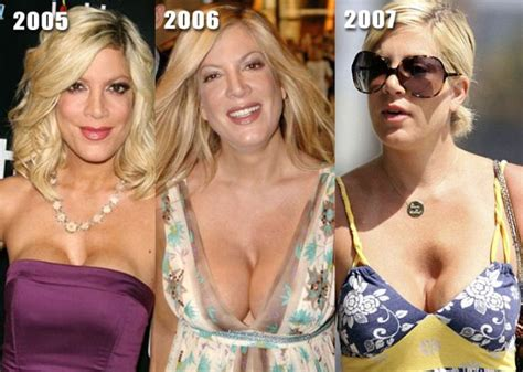 celebrities before and after jobs 15 pics