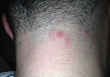 scalp ingrown hair bumps after haircut bumps on back of head skull painful neck after haircut
