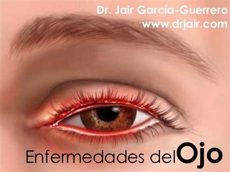 imagenes de ojos clase enfermedades del ojo