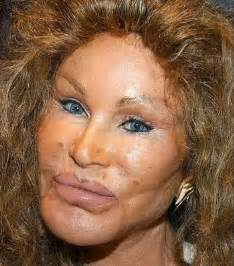 jocelyn wildenstein catwoman plastic surgery horror damn cool pictures