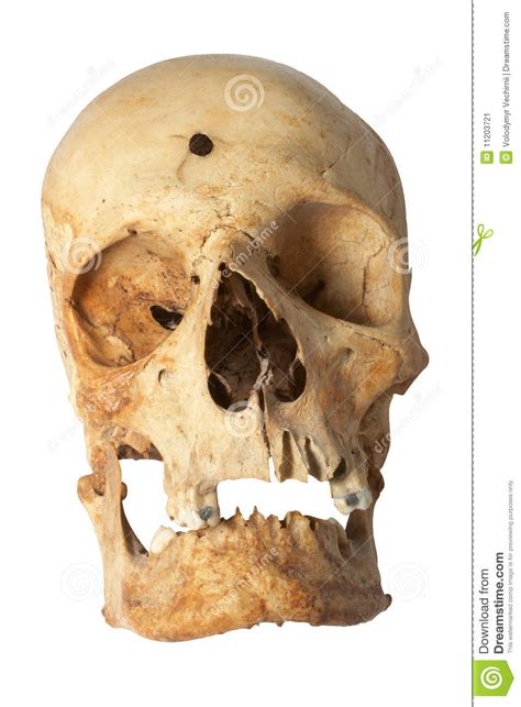 Bullet Hole In Human Skull Stock Image Image 11203721 Skull With Bullet