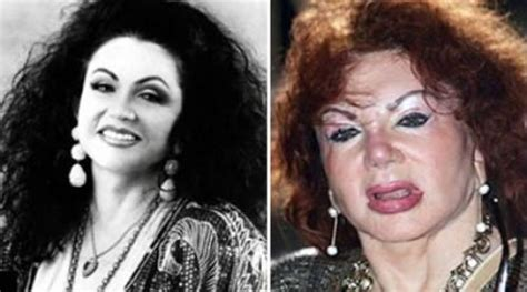 plastic surgery gone wrong 26 worst celebrity before and