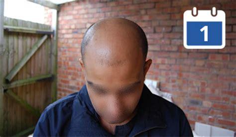 hair transplant journey melbourne hair transplant clinic a new hair transplant journey is underway hasson wong