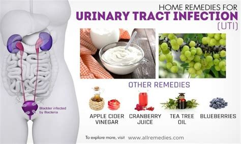 30 home remedies for uti infections in