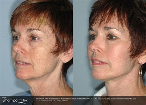 how to contour face jowles smartlipo laser liposuction body sculpting cascade