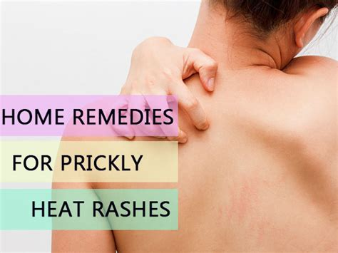 home remedies for prickly heat rashes boldsky
