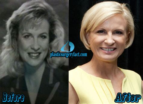 mika brzezinski plastic surgery before and after pictures the gallery for gt mika brzezinski young