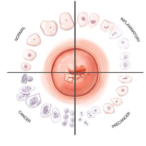 cervical cancer diagram 252 best images about uterine and post menopause cancer on