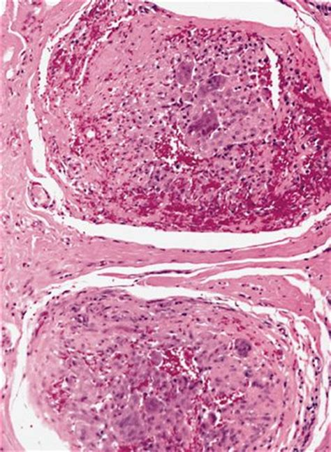 Hmb 45 Pathology Outlines by Anabible Dr Michels Tumeur Fibrohistiocytaire Plexiforme