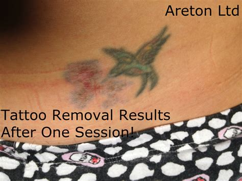 tattoo removal after 1 session removal beautyteck