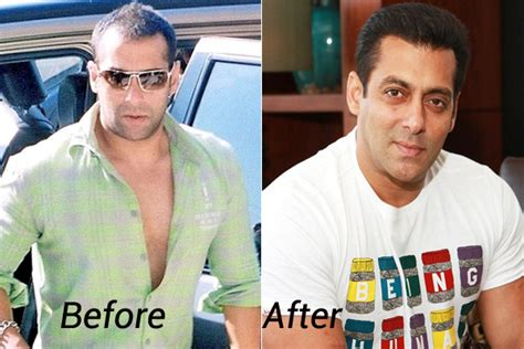 salman khan hair transplant cost celebrity hair transplant top hair transplant center
