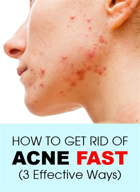 How To Get Rid Of by Ways To Get Rid Of Acne How To Get Rid Of Acne