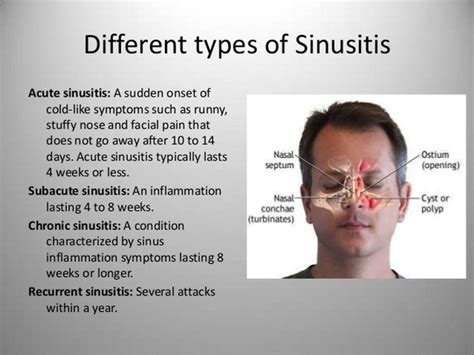 Sinus Efection Detox Symtom by What S A Medicine And Or Home Remedy For Sinusitis