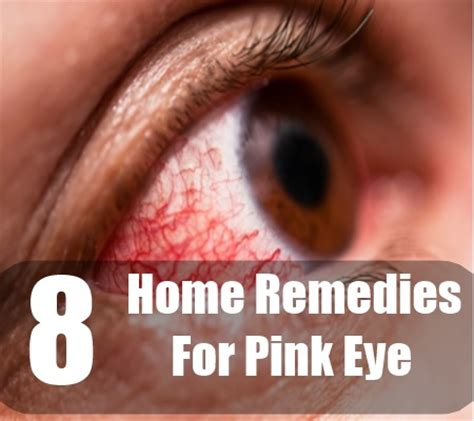 home remedies for pink eye treatments cure for