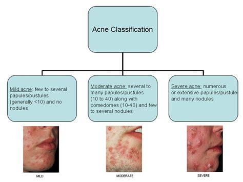 Regular Acne acne in learn pediatrics