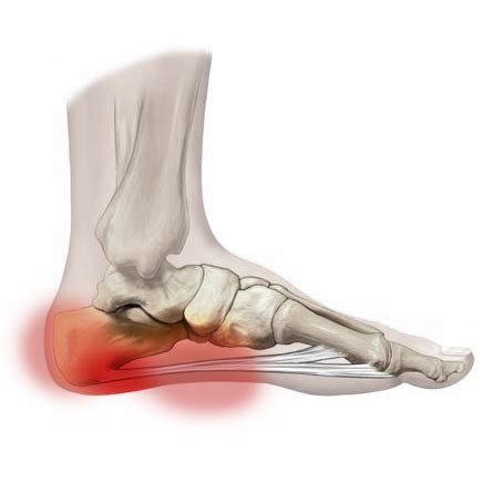 high heels plantar fasciitis healing heels riccardo vaccaro physiotherapy