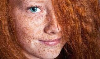 tattoo freckles melbourne skin concerns and medical grade treatments melbourne