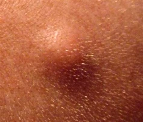 sebaceous cyst picture sebaceous cyst