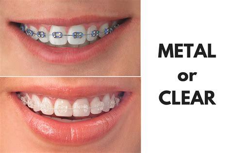 Bracket Behel Metal Sky Ortho ask your and longview orthodontist should i get
