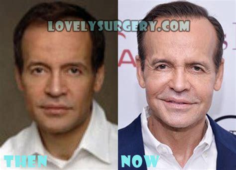 Louis Licari Plastic Surgery Before | louis licari plastic surgery before and after photos