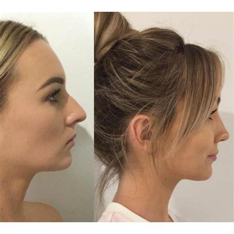 mens haircuts gold coast 7 best nose job men before after images on pinterest