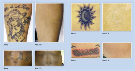 tattoo removal companies before and after laser removal pictures