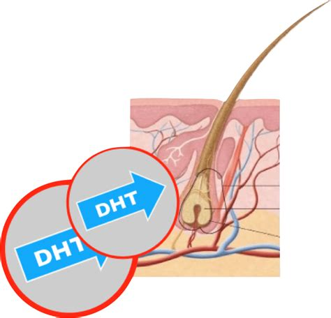 removing dht from your body 1 fastest way to remove dht from your scalp naturally