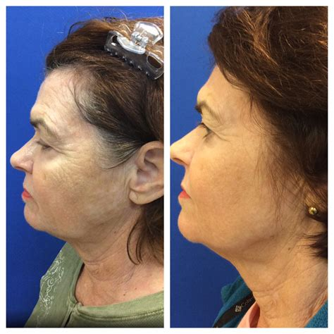 laser wrinkle removal before and after fractional laser scar treatment services skin resurfacing