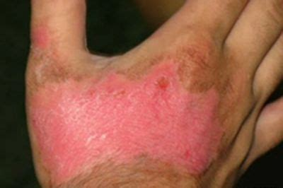 imagenes de uñas quemadas remedios caseros para las quemaduras