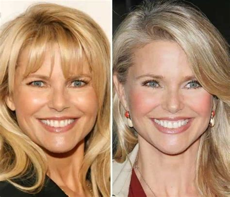 Christie Brinkley Gets Emergency Surgery by Christie Brinkley Before And After Plastic Surgery 07
