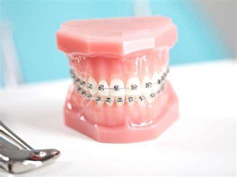 prezzo protesi dentaria mobile prezzi protesi dentarie mobili protesi dentali nelle