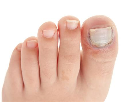 toenail lifting from nail bed toenail pulling away from toe doctor insights on healthtap