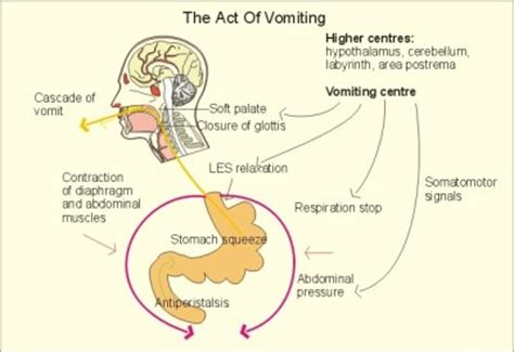 what to do when vomits vomiting causes symptoms and treatment health care quot qsota quot tips and tricks doctors