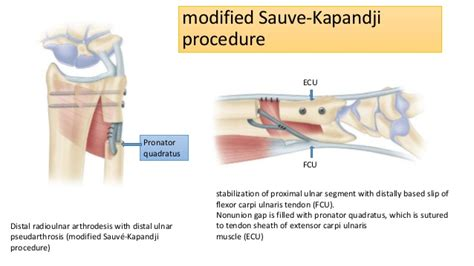 Ecu Mba Salary by Modified Sauve Kapandji Procedure For Patients With