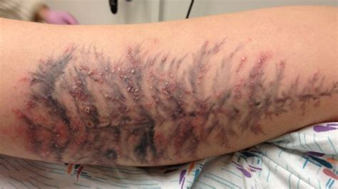 infected tattoo wait for it tattoo ink linked to serious skin infections shots