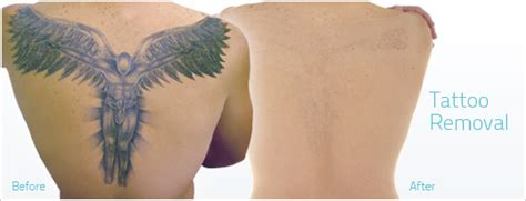 methods of tattoo removal removal methods the ones that work and the ones