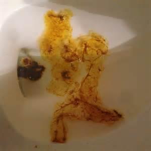 desperate is it colitis parasite crohns flukes