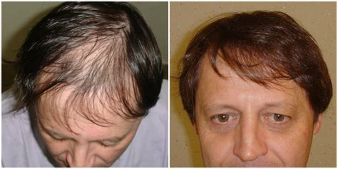 prescreened hair transplant physicians hair transplant eyebrows hairstylegalleries com
